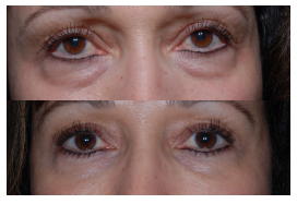 cosmetic treatments around the eyes