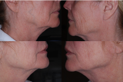 jowls treatment Philadelphia