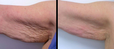 Before and After underarm fat treatment