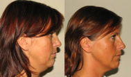 Before and after neck fat treatments