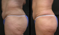 Before and after fat lose treatments