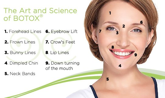 BOTOX treatment areas for the face.