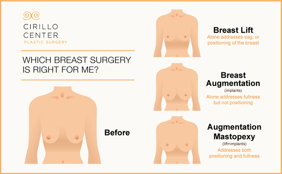At the Cirillo Center for Plastic Surgery, mastopexy addresses both sagging and a lack of fullness. The result is shapely breasts with extra volume.