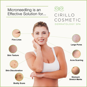 Cirillo Cosmetic Dermatology Spa offers microneedling to treat a wide range of cosmetic skin conditions.
