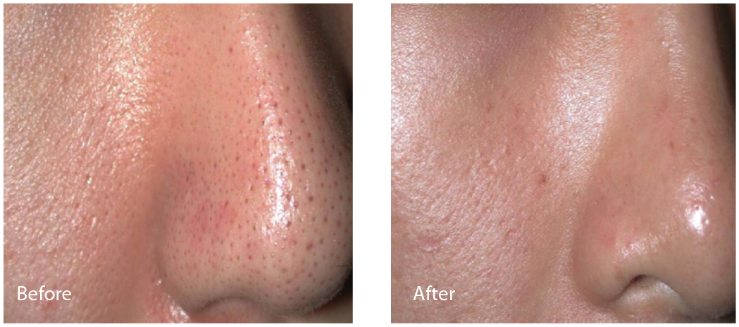 Images taken before (left) and after (right) nasal pore size reduction with Lutronic Spectra.