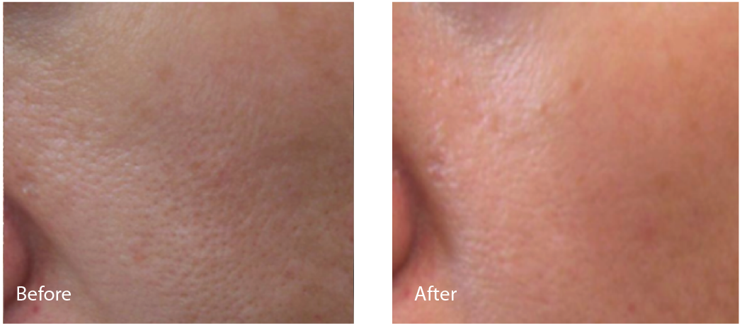 Before (left) and after (right) images of cheek pore size reduction with Lutronic Spectra.