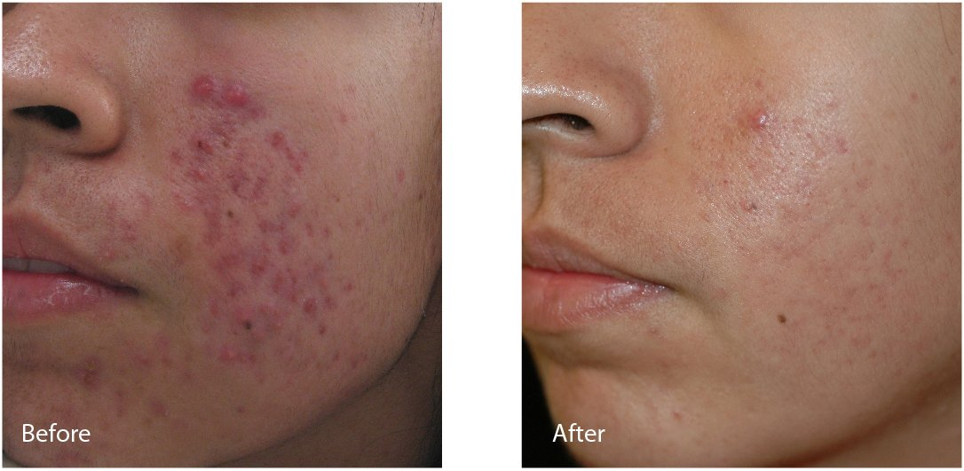 Before (left) and after (right) images of acne, scar, and redness reduction with Lutronic Spectra.