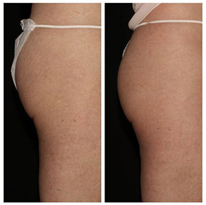 Emsculpt buttocks before and after, Bryn Mawr, PA