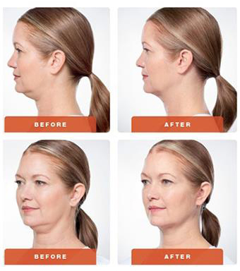 Kybella® is a minimally invasive, non-surgical prescription to reduce fat cell size