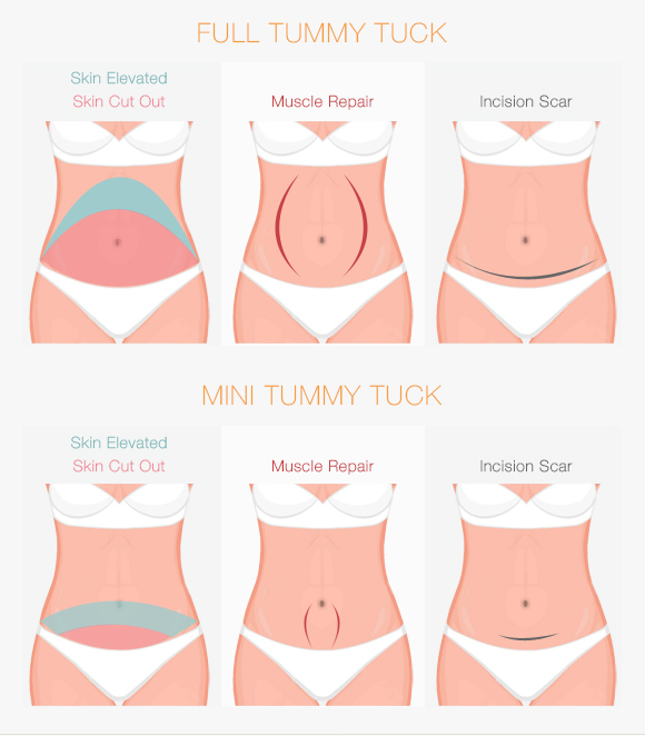 Choose from either a full or mini tummy tuck at Bryn Mawr and Newtown Square's Cirillo Center for Plastic Surgery.