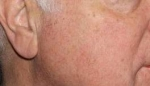Facial Redness Reduction After
