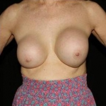 Breast Augmentation - Case #1 Before
