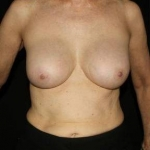 Breast Augmentation - Case #1 After