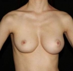 Breast Augmentation - Case #2   Unilateral Before