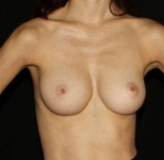 Breast Augmentation - Case #2   Unilateral After
