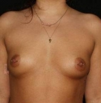 Breast Augmentation - Case #3 Before