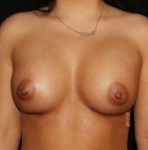 Breast Augmentation - Case #3 After