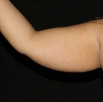 Upper Arm Liposuction Before