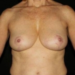 Breast Reduction - Case #2 After