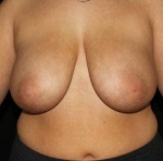 Breast Reduction - Case #3 Before