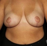 Breast Reduction - Case #3 After