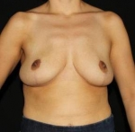 Breast Reduction - Case #4 After