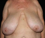 Breast Reduction - Case #6 Before