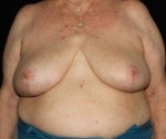 Breast Reduction - Case #6 After