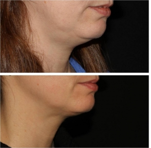 Kybella to Submental