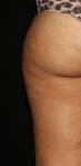 Coolsculpting to Inner & Outer Thighs Before
