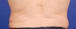 Coolsculpting of the love handles Before