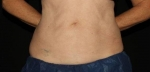 Emsculpt Abdomen After
