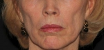 Sculptra-Lower Face Before