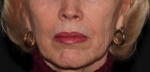 Sculptra-Lower Face After