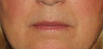 Filler & Botox to lip lines Before