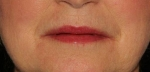 Filler & Botox to lip lines After