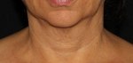 Infini Neck Before